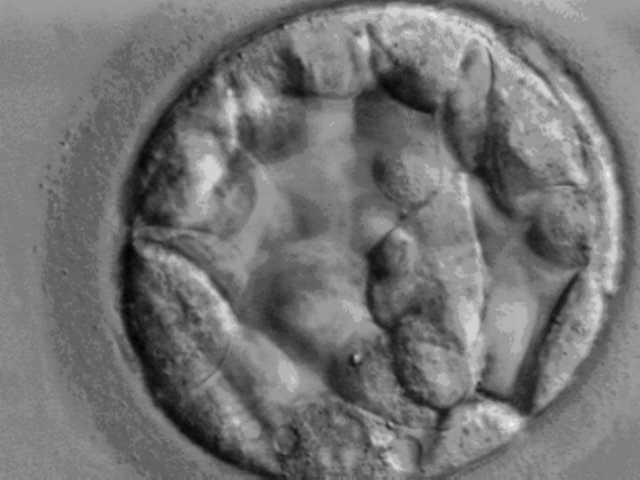 Missouri appeals court rules frozen pre-embryos are marital property