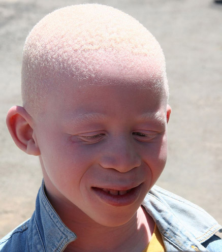 UN expert: Malawi must protect people with albinism from attack