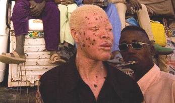 UN rights experts urge Malawi to protect people with albinism